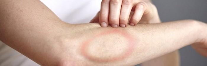 BORELIOZA - naturalne leczenie